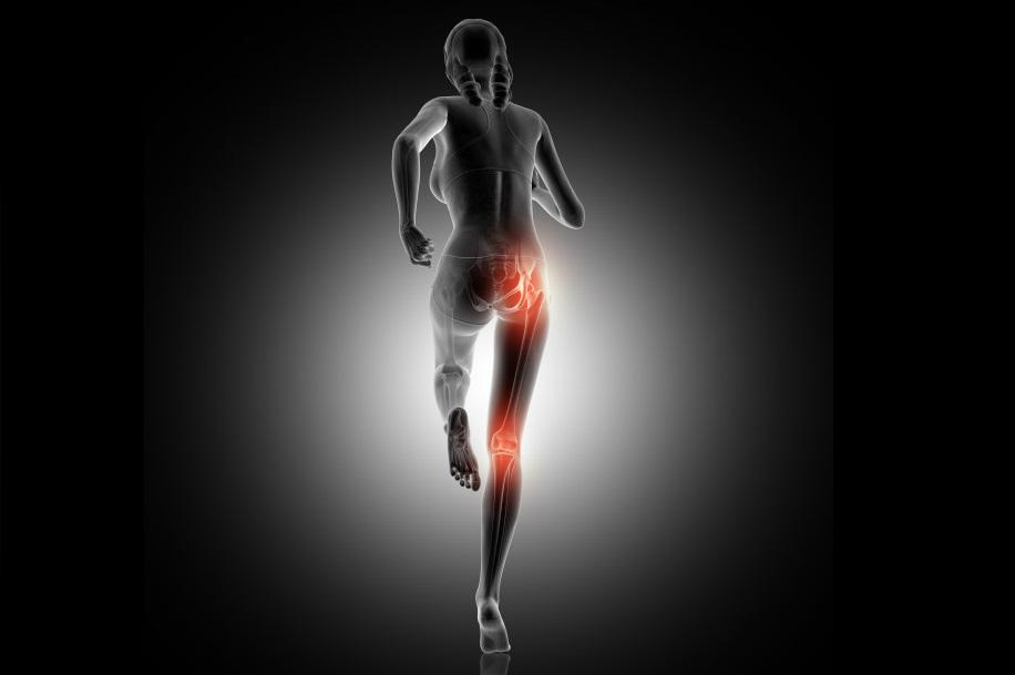 Η αδυναμία στα ισχία μπορεί να είναι η αιτία εμφάνισης πόνου στα γόνατα