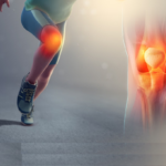 Χονδροπάθεια γόνατος  & θεραπεία μέσω άσκησης